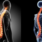 Spinal Curves: What is the ideal shape of the spine?